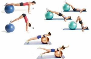 Физикална терапия sportna херния