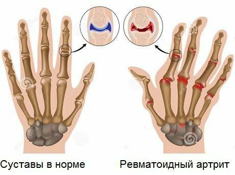Nivelrikko sormissa