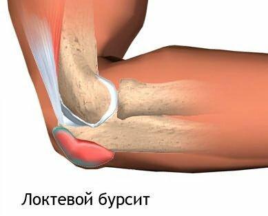 Orthesen am kniegelenk für arthrose von 3 grad