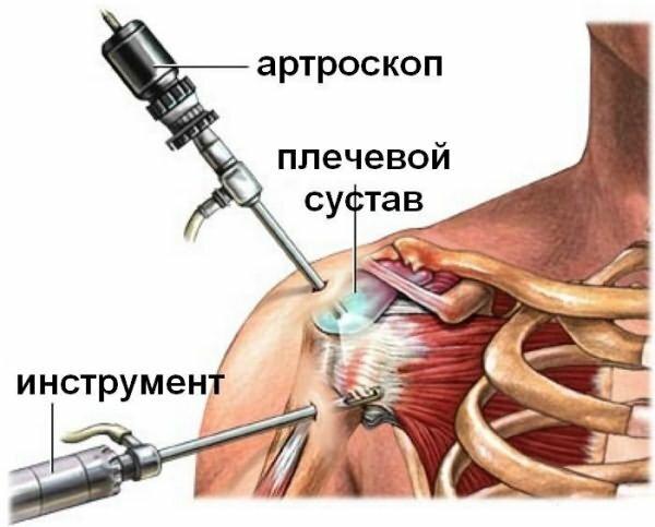 Rückenmassage für muskelschmerzen