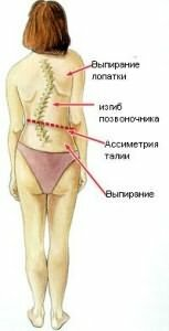 venstre konveks skoliose