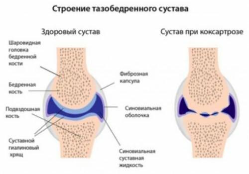 Tratament pentru cearcane