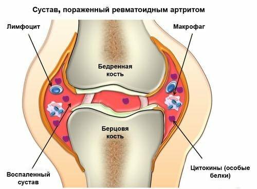 Trattamento diroton - Stadio della malattia ipertensione