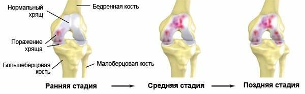 Tratamentul cu osteocondroza Denas
