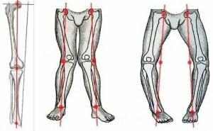 Knieschmerzen: das sind die neuen Behandlungsmethoden