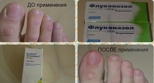 Какие лекарства при грибке ногтей на руках