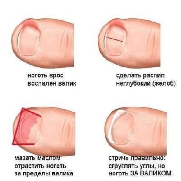 Как сделать чтобы ногти не врастали в кожу